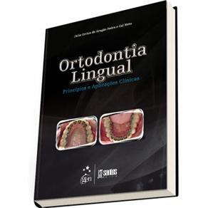 Ortodontia Lingual: Princípios e Aplicações Clínicas - Julio Orrico de Aragão Pedra e Cal Neto