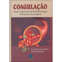 Coagulação - Visão Laboratorial da Hemostasia Primária e Secundária