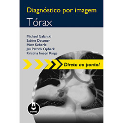Diagnóstico por Imagem - Torax - Coleção Direito ao Ponto