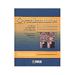 Overdentures das Raízes aos Implantes Osseointegra