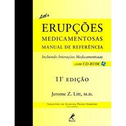 Litt's Erupções Medicamentosas