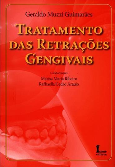 Tratamento das Retrações Gengivais
