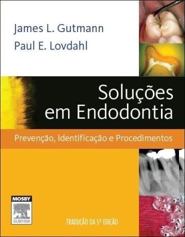 Solução de Problemas de Endodontia